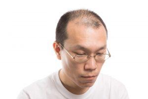 山口達也がハゲ疑惑!現在の髪型を坊主? 痩せた理由は?